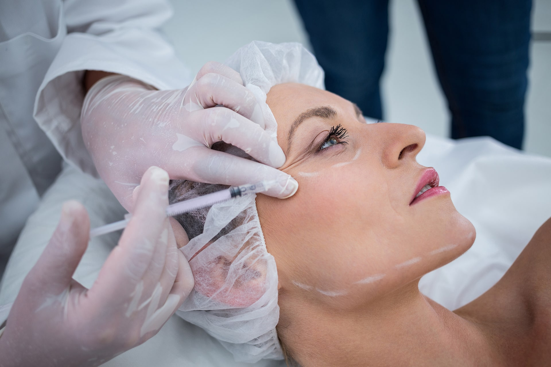Injertos de grasa facial: ¿Es su propia grasa una mejor apuesta que el relleno dérmico?